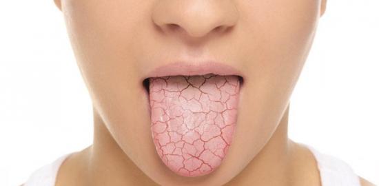 saliva-control